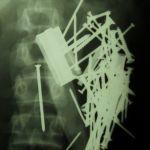 Множественные металлические инородные тела в желудке - рентгенограмма