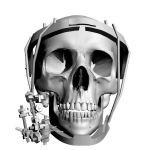 Экзоскелет нижней челюсти - перспективное изобретение коллектива разработчиков ВолгГМУ