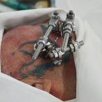 монтаж экзоскелета нижней челюсти коллектива разработчиков ВолгГМУ на человеке